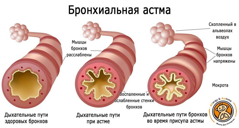 Бронхиальная астма и гиперреактивность бронхов