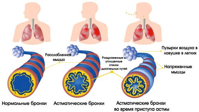 физическая астма