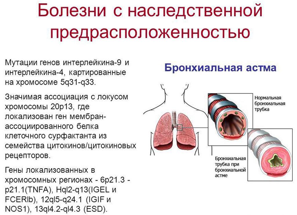 Наследственная астма - генетическая теория заболевания