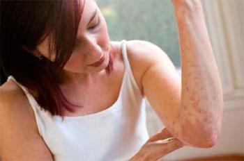 виды кожной аллергии