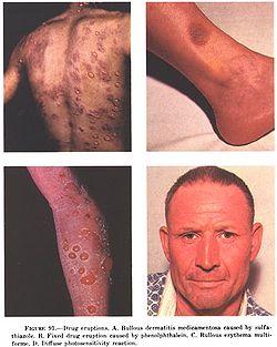 симптомы кожной аллергии
