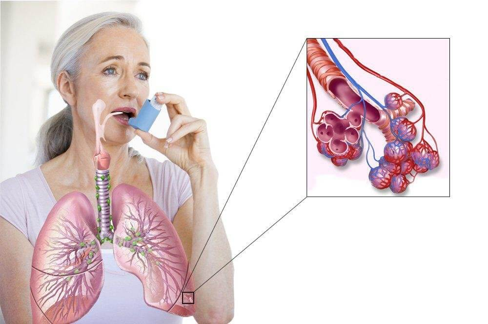 Бронхорасширяющие препараты при астме