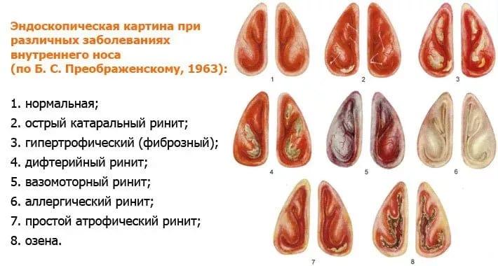 аллергический ринит лекарство