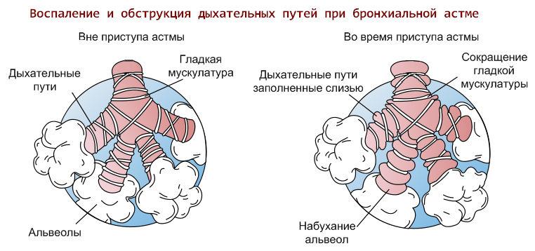 астма на холод