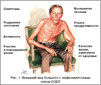 диагностика хобл