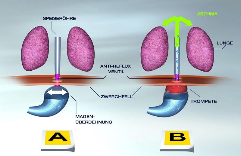 Бывает ли астма от проблем с желудком?