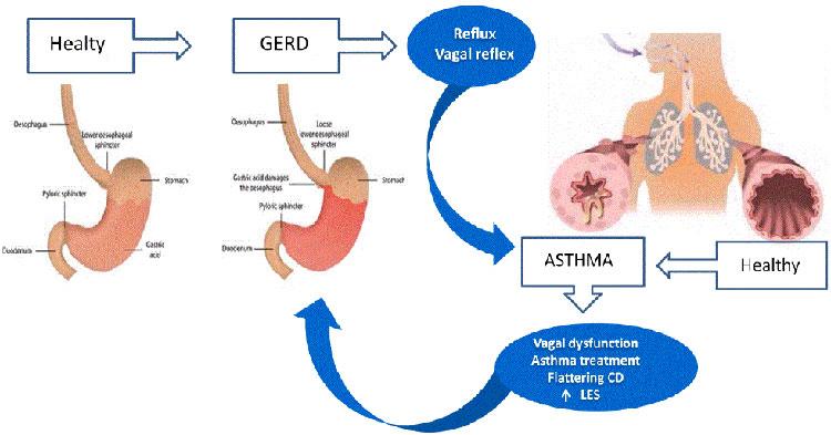 симптомы желудочной астмы