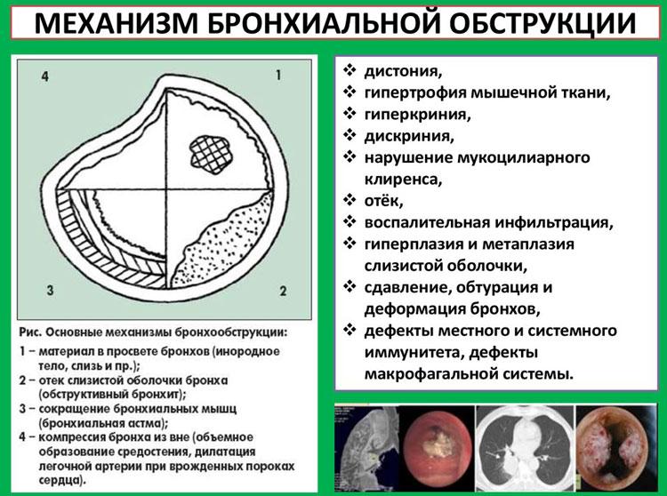 симптомы бронхообструктивного синдрома