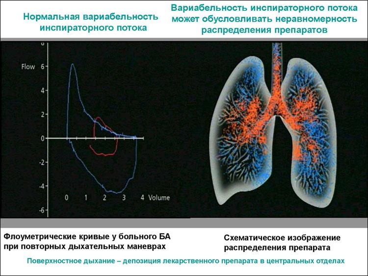 лучшие ингаляторы при астме