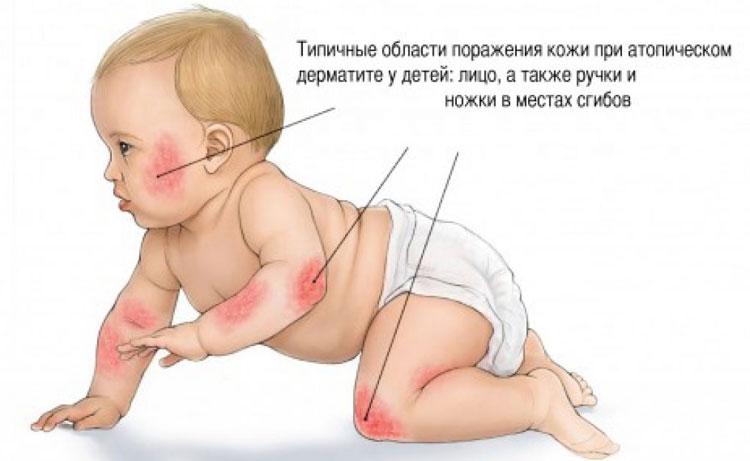 проявления грибкового дерматита у детей