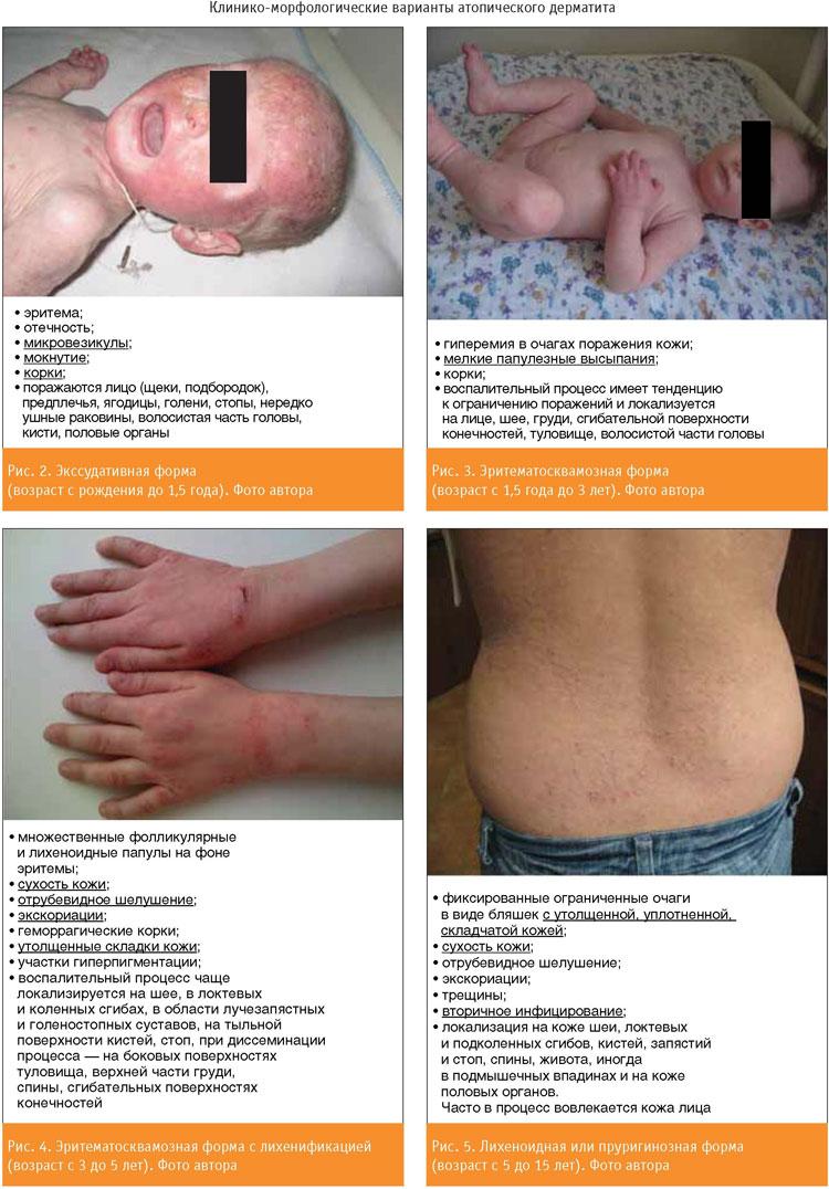Классификация атопического дерматита