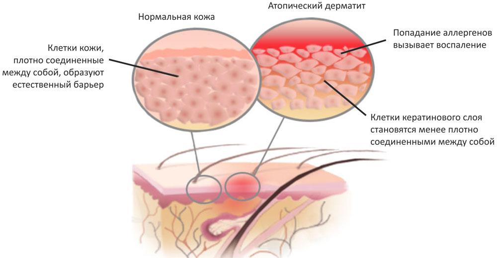 Клинические рекомендации по лечению атопического дерматита