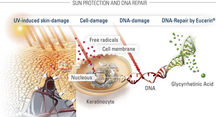 солнечная крапивница фото симптомы