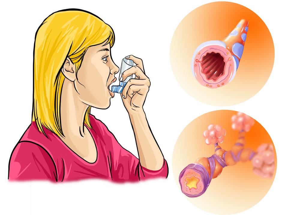Гормоны при бронхиальной астме