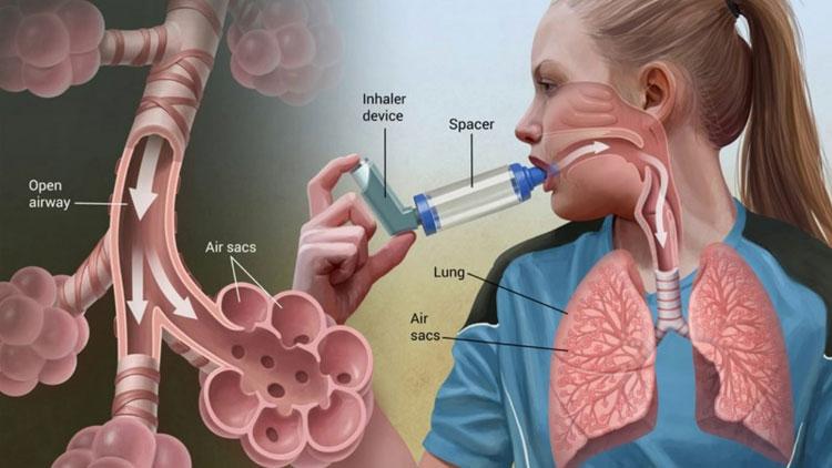какие гормоны принимать при астме