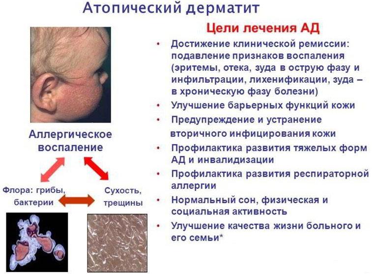 увлажняющий крем при атопическом дерматите