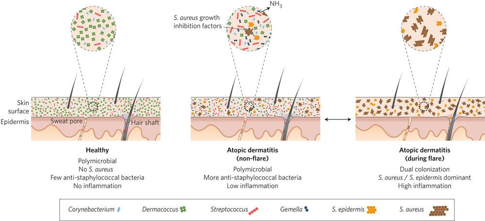 Роль аллергенов и загрязнения окружающей среды при атопическом дерматите