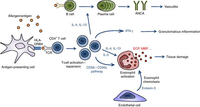 клиническая картина эозинофильный гранулематоз с полиангиитом